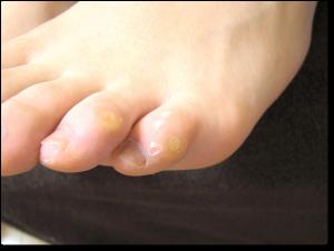 足趾の胼胝・鶏眼 施術前