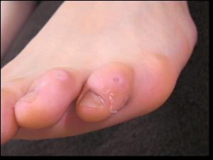 足趾の胼胝・鶏眼 施術後