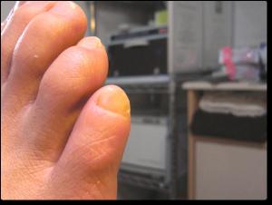 小趾ネイルケア 施術後